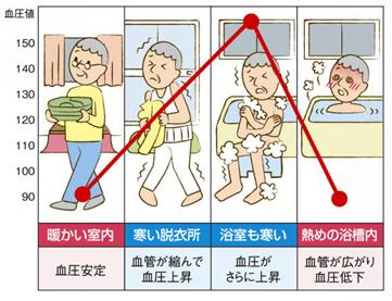 温度差によって変化する血圧イメージ
